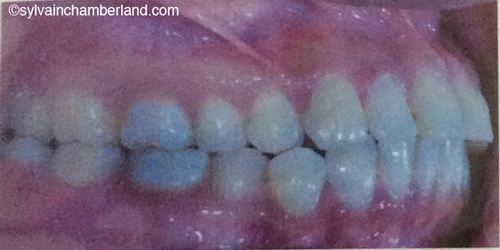 Class I, intraoral view-Dr Chamberland orthodontist in Quebec City