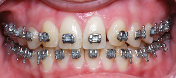 Mini Twin transfer case-Dr Chamberland orthodontist in Quebec City