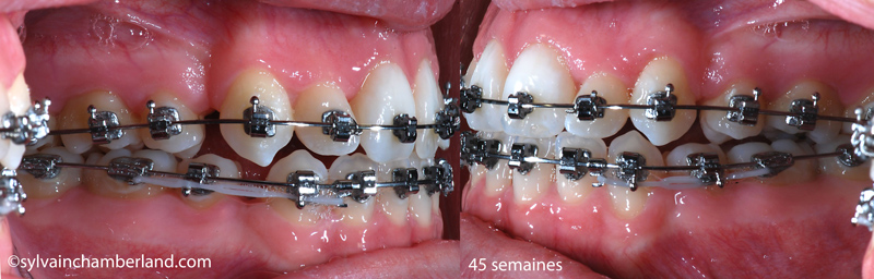 PaPAGe-45-semaines-fin-retraction-en-masse-Chamberland-Orthodontiste-Quebec
