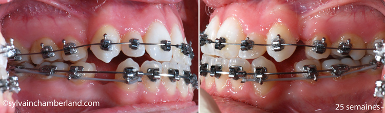 PaPaGe-25-semaines-retraction-en-masse-inferieur-Chamberland-Orthodontiste-Quebec