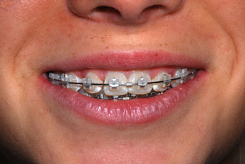 In-Ovation C smile-Dr Chamberland orthodontist in Quebec City