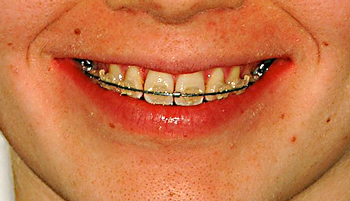 White bracket smile-Dr Chamberland orthodontist in Quebec City