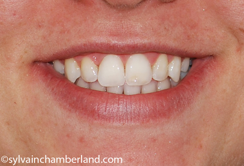 Sourire-de-PaPaGe-Chamberland-Orthodontiste-Quebec
