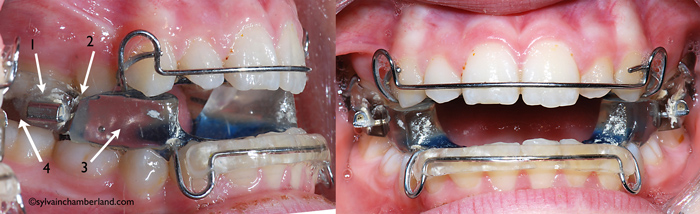 Twin-Block-Dr Chamberland orthodontiste à Québec