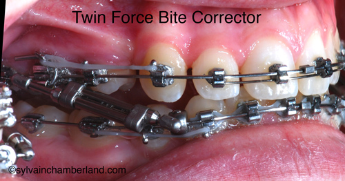 Bielles Twin Force Bite Corrector-Dr Chamberland orthodontiste à Québec