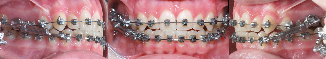 Twin Force Bite Corrector-Dr Chamberland orthodontiste à Québec