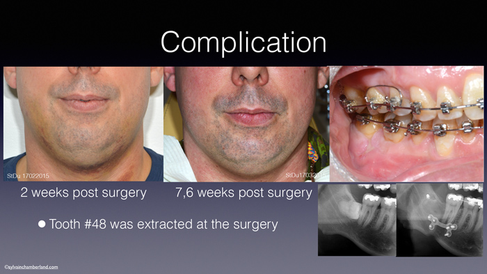 Infection-post-chirurgie-et-extraction-de-dent-de-sagesse-Chamberland-orthodontiste-a-Quebec