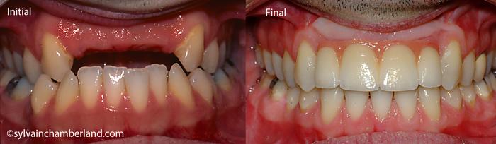 Prothèse sur implant édentation partielle chbe implant antérieur-Dr Chamberland orthodontiste à Québec