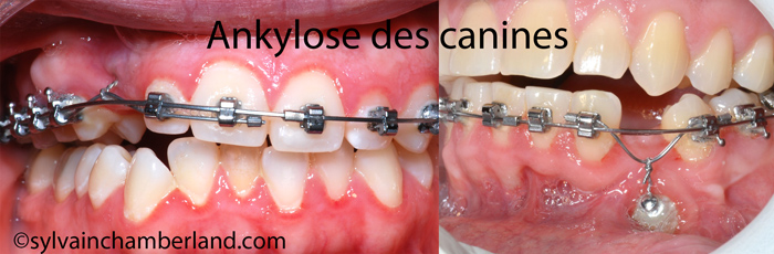 ankylose-de-canines-incluses-chamberland-orthodontiste-a-quebec