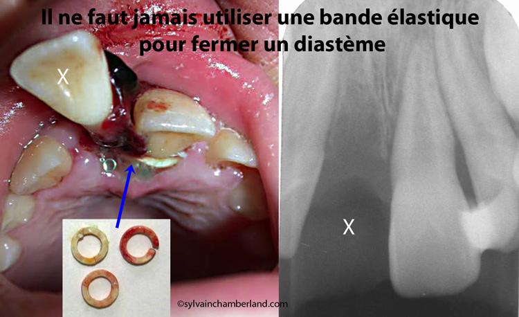 Avulsion dentaire iatrogénique à cause de bandes élastiques-Dr Chamberland orthodontiste à Québec