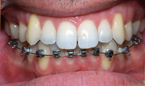 Incognito bracket-Dr Chamberland orthodontist in Quebec City