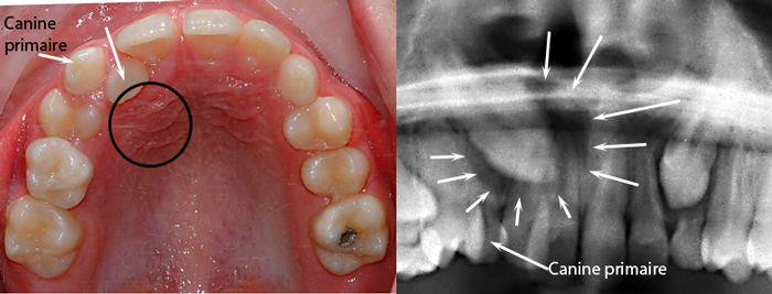 Canines Incluses Orthodontiste 224 Qu 233 Bec
