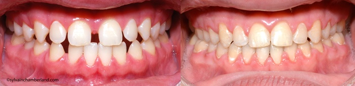 Diasteme-interincisif-aux-2-arcades-JeRo-Chamberland-Orthodontiste-a-Quebec