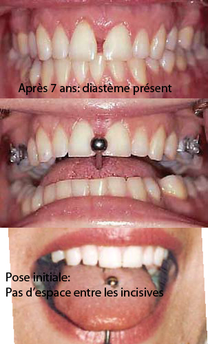 piercing de la langue dr sylvain chamberland orthodontiste. Black Bedroom Furniture Sets. Home Design Ideas