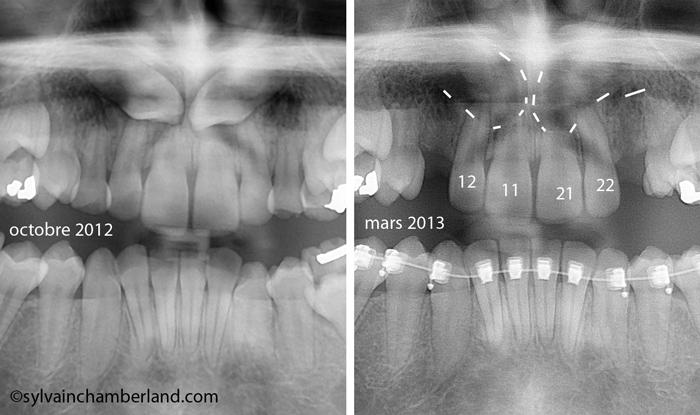 JaSa Canine incluse et résorption radiculaire-Dr Chamberland orthodontiste à Québec