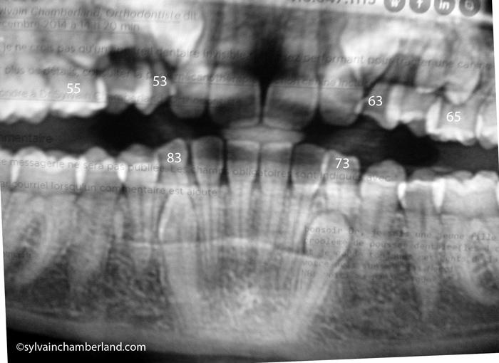 Kari-retention-prolongee-des-dents-primaires-Chamberland-Orthodontiste-a-Quebec
