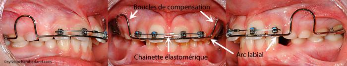 LamLisa Ma Fermeture diastème appareil amovible Hawley et brackets orthodontiques-Dr Chamberland orthodontiste à Québec