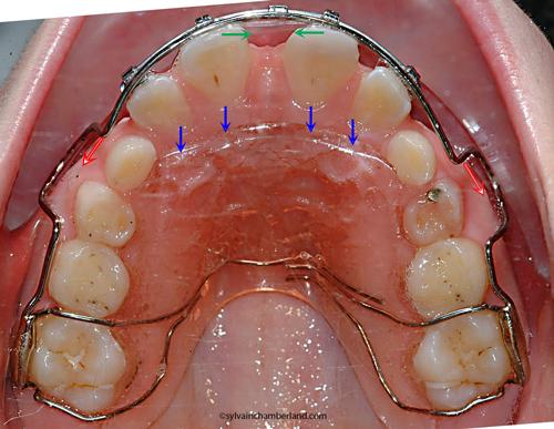 LamLisa Ma appareil amovible Hawley retainer avec arc labial-Dr Chamberland orthodontiste à Québec