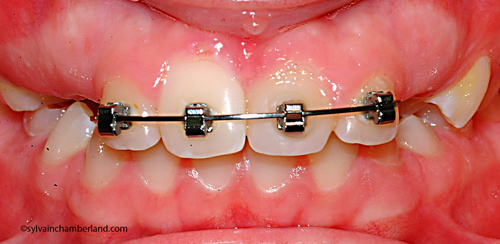 LamLisa Ma iof fin de phase 1 Hawley-Dr Chamberland orthodontiste à Québec