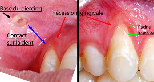 info pour super promotions qualité de la marque Piercing de la langue - Dr Sylvain Chamberland Orthodontiste