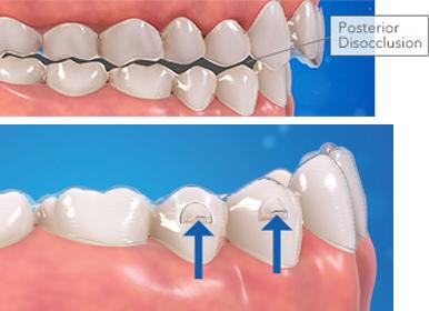 Precision-bite-ramp_cale-de-precision-et-disclusion-posterieure-Chamberland-orthodontiste-a-Quebec