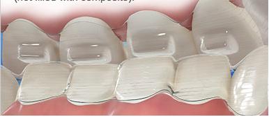 Precison-bite-ramp-cale-de-precsion-Chamberland-orthodontiste-a-Quebec
