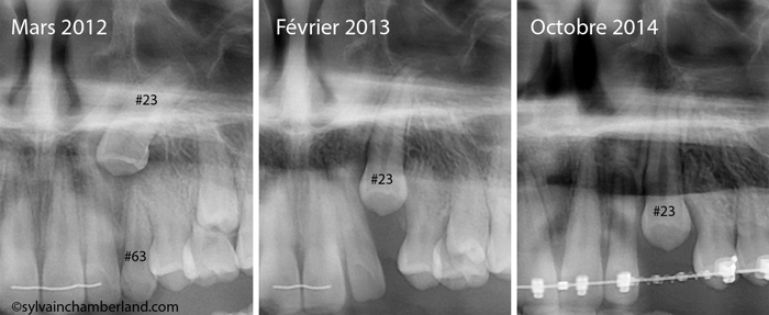 SaSth-extraction-canine-primaire-canine-incluse-autoeruption-CHamberland-orthodontiste-a-Quebec