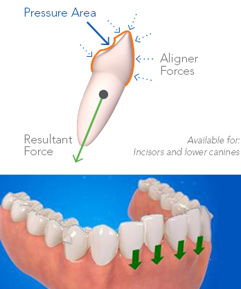 Smart-Force-et-intrusion-anterieure-Invisalign-Chamberland-Orthodontiste-a-Quebec