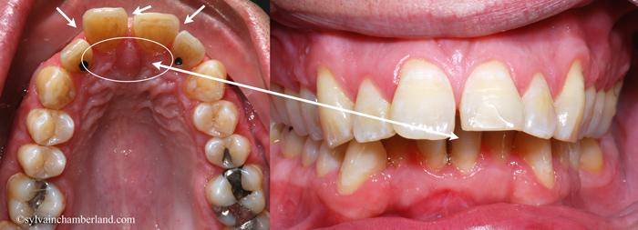Supraclusion parodontite diasteme StDu-Dr Chamberland orthodontiste à Québec