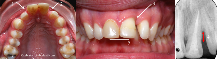 Supraclusion_poche-parodontale_diasteme-intedentaire-orthodontiste-Chamberland-Quebec