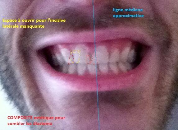 Vincent incisive latérale manquante-Dr Chamberland orthodontiste à Québec