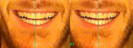 Vincent projet-Dr Chamberland orthodontiste à Québec