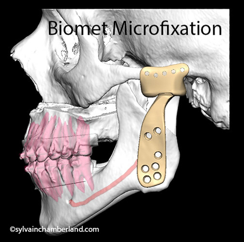 Biomet-Total-joint-prothesis-Chamberland-Orthodontiste-a-Quebec