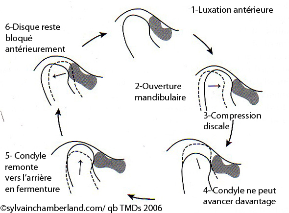 Trouble à l'articulation temporo-mandibulaire | Orthodontiste à Québec