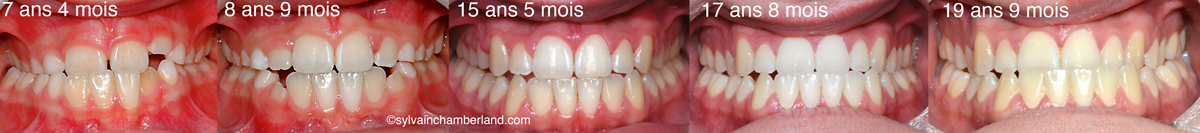 Classe-III-DomPel-Masque-de-Delaire-Chamberland-Orthodontiste-a-Quebec