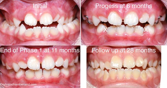 MaAnFa-cl-III-openbite-masque-de-Delaire-Chamberland-Orthodontiste-a-Quebec