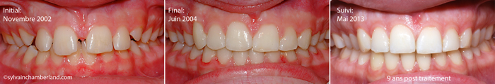 CaMor-frein-labial-superieur-Chamberland-Orthodontiste-Quebec