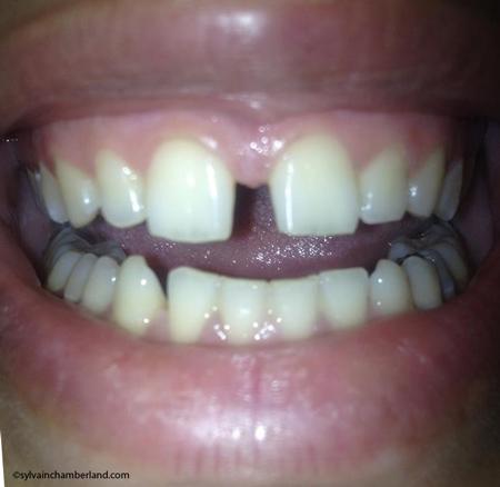 Diasteme-de-4-mm-Chamberland-Orthodontiste-a-Quebec