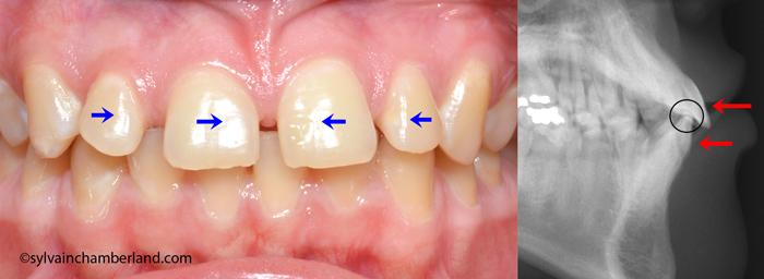 Diasteme-et-supraclusion-VaTa-Chamberland-orthodontiste-Quebec