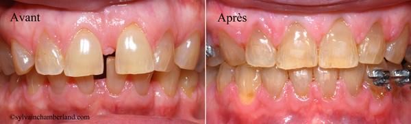 Diasteme-interincisif-avant-apres-orthodontiste-Chamberland-Quebec