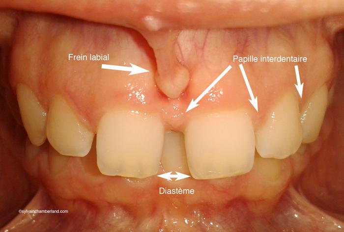 Diasteme-interincisif-et-frein-labial-superieur-Chamberland-Orthodontiste-a-Quebec
