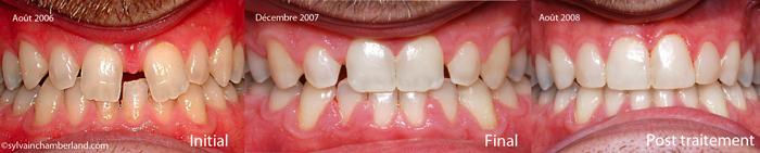 Diastème interincisif-Dr Chamberland orthodontiste à Québec