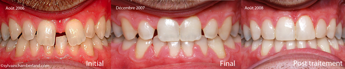 Diasteme-interincisif-orthodontiste-chamberland-Quebec