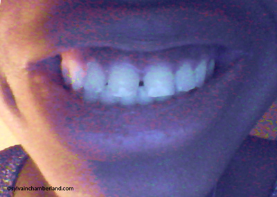 Fanta-diasteme-interincisif_dents-du-bonheur-Chamberland-orthodontiste-Quebec