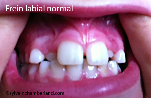 Frein-Labial-normal-Chamberland-Orthodontiste-a-Quebec