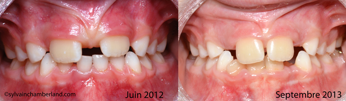 Frein-labial-anormal-et-diasteme-interincisif-Chamberland-Orthodontiste-Quebec