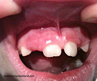 Frein labial et fr nectomie orthodontiste qu bec for Interieur de la bouche
