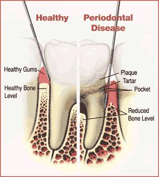 Parodonte_tartre-et-inflammation-Chamberland-Orthodontiste-Quebec
