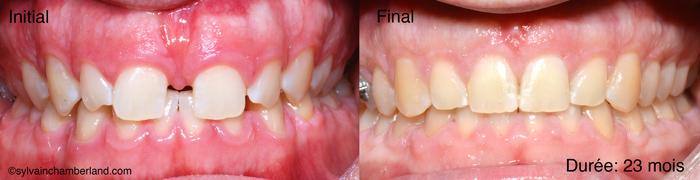 PiLuLa-diasteme-interincisif-et-frein-labial-superieur-Chamberland-Orthodontiste-a-Quebec