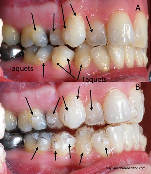 Repousse des dents adultes